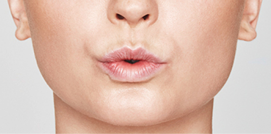 Dermal Fillers - Non-Surgical Treatments | Treatments